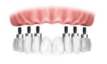 implantologia all on 6 - sassuolo, modena
