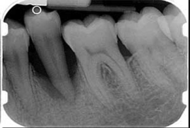 dente parodontopatico