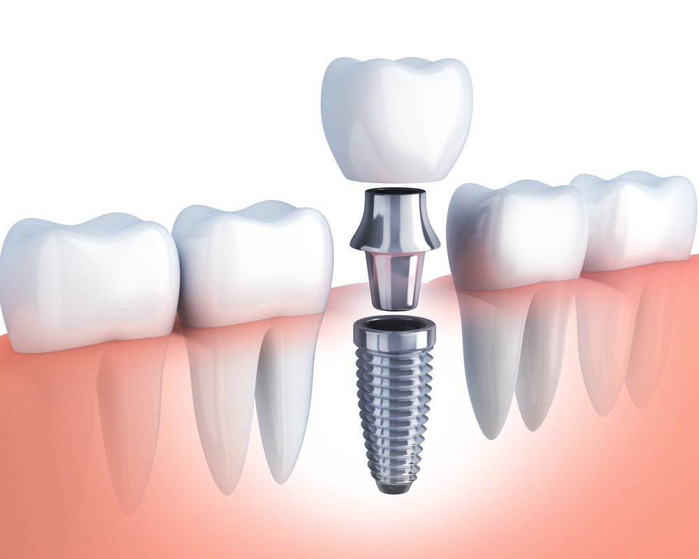 dentista implantologia sassuolo