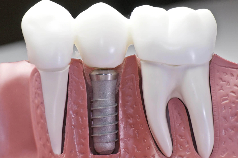 impianti dentali alta qualit? italiana - sassuolo