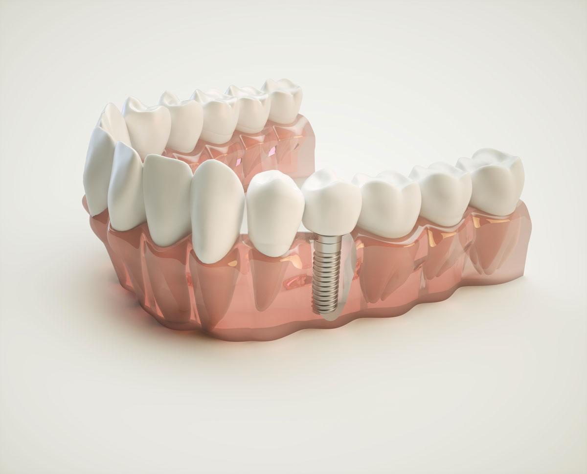 implantologia dentale osteointegrata sassuolo