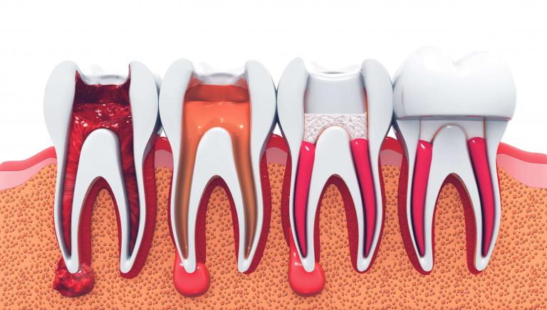 sensibilita caldo freddo denti sassuolo modena